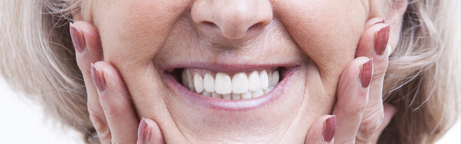 All-On-4 Dental Implants  in Dixon, IL