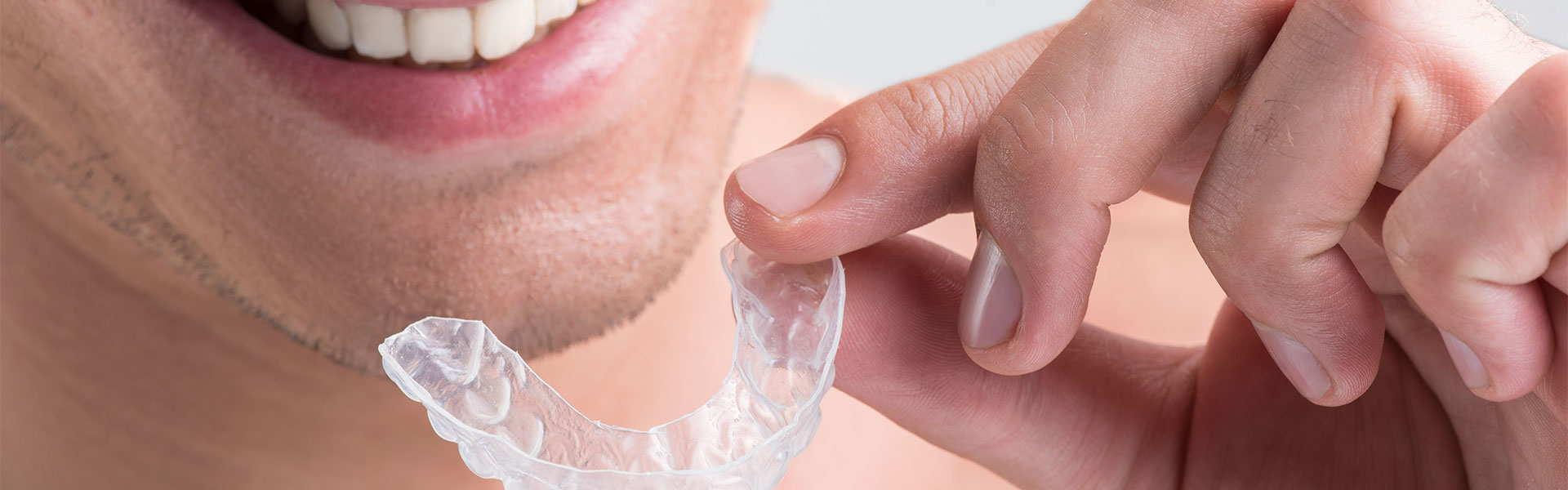 Invisalign Treatment in Dixon, IL