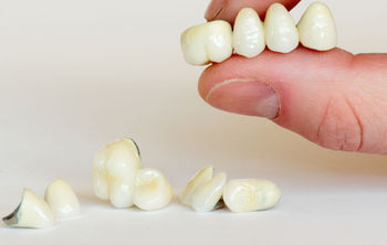 What You Should Know Before Getting Dental Crowns or Bridges
