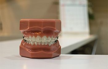 5% Off Orthodontic Treatment for Cash Patients