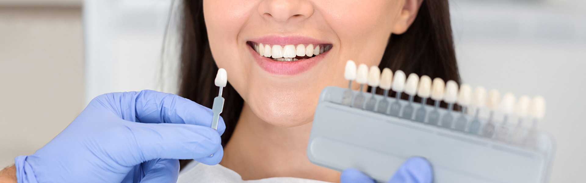 Can You Eat With Veneers?